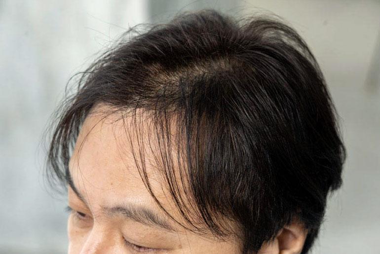 日本人の平均5人に1人が、将来薄毛に悩むと言われています