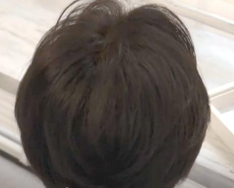 cuus hair 頭皮改善コース 男性AFTER