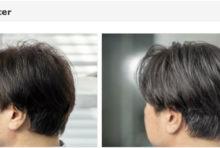 【5/31まで】薄毛、臭い、抜け毛予防に特化した「頭皮環境改善コース」がお得!! クーズヘア